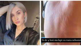 """Imagine șocantă cu Adda! Soția lui Cătălin Rizea s-a afișat cu spatele plin de răni: """"Mi-am neglijat corpul"""" / FOTO"""