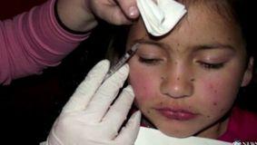 I-a injectat fiicei sale de doar 8 ani botox, în mod repetat, deși micuța nu era de acord. De-abia acum s-a aflat de ce a făcut una ca asta
